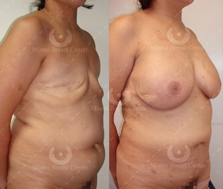 with fat reconstruction Breast